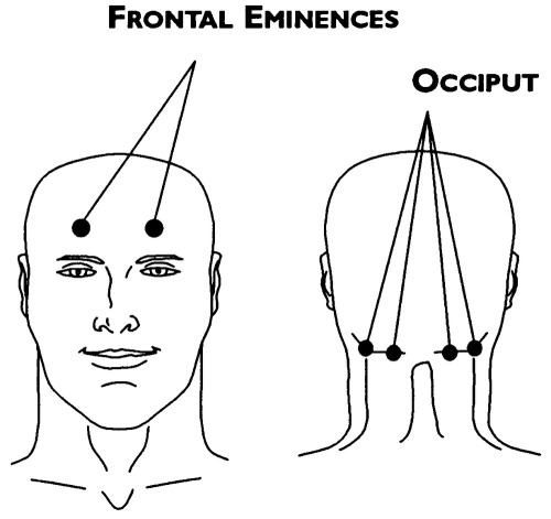 Frontal_eminences